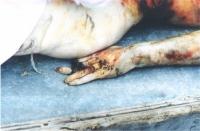Dettaglio del dito spezzato di un cadavere. (Cecenia)